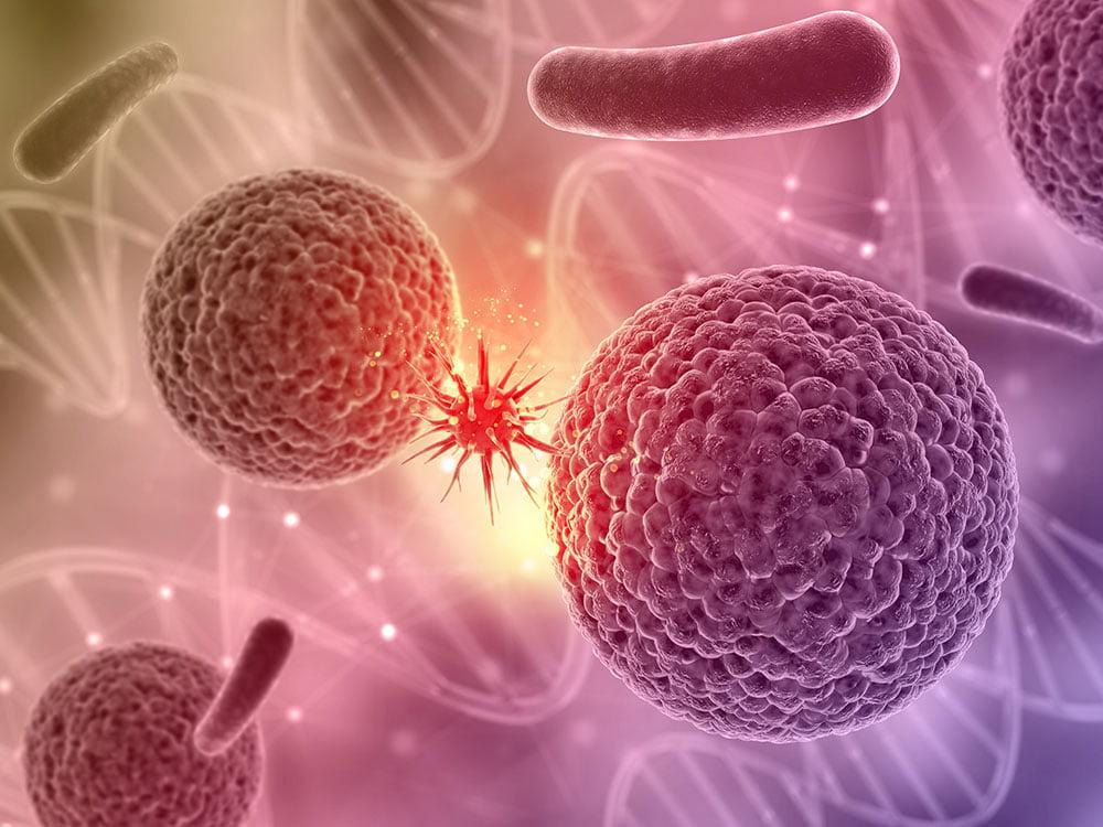 Nutrición oncológica en Albacete